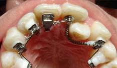 prix orthodontie linguale
